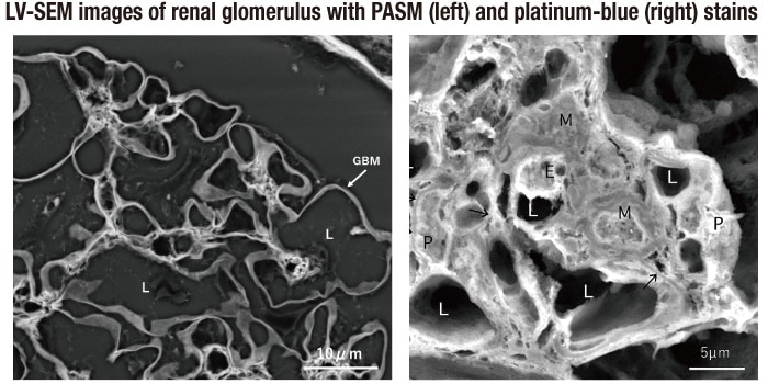 Fig. 3 PASM and platinum-blue stains
