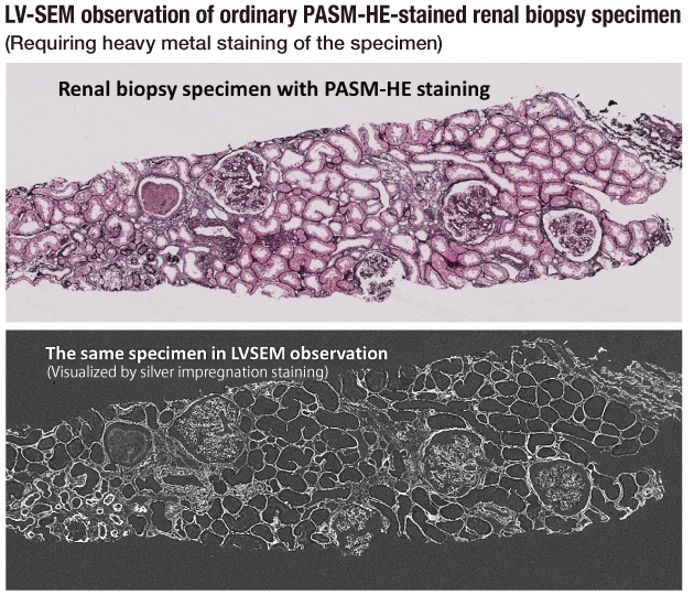 Fig. 4 Comparison of tissue images obtained by LM and LV-SEM from the same LM slide